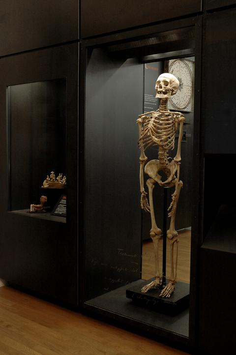 scheletro_Cesare_Lombroso